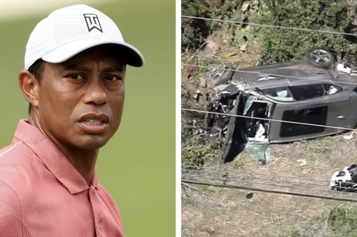 Tiger Woods had serious leg injuries after a high-speed crash, but was calm and lucid, authorities say