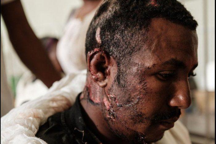 Heavy casualties reported in Ethiopia air strike